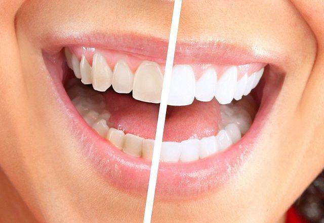 Отбеливание зубов в домашних условиях а 266
